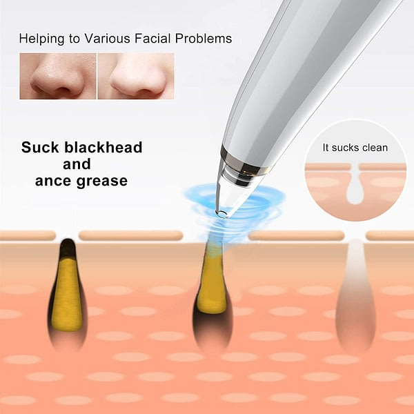 2021 Newest Blackhead Remover Pore Vacuum Electric Pore Cleaner, 3 Suction Power & 5 Probes, USB Rechargeable for All Skin